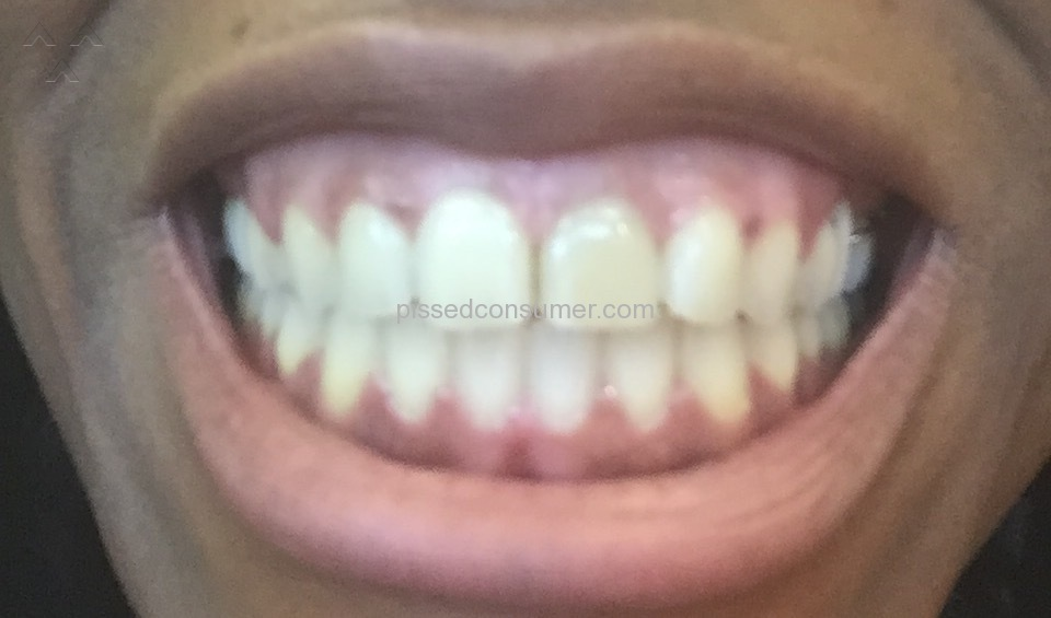pearl brite teeth whitening reviews