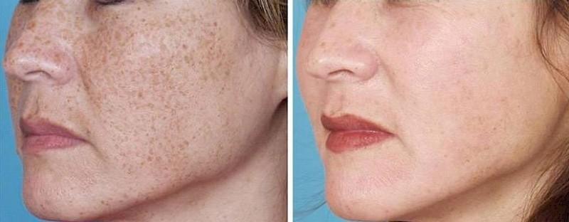 light treatment for acne reviews